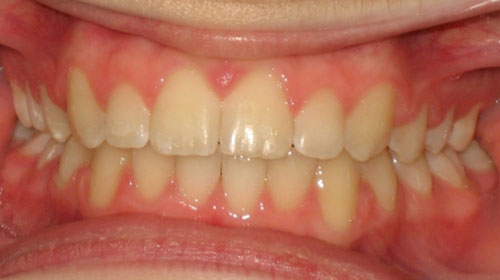 Overbite-After