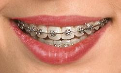 self-ligating braces